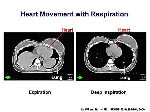 heart movement with respiration (1)