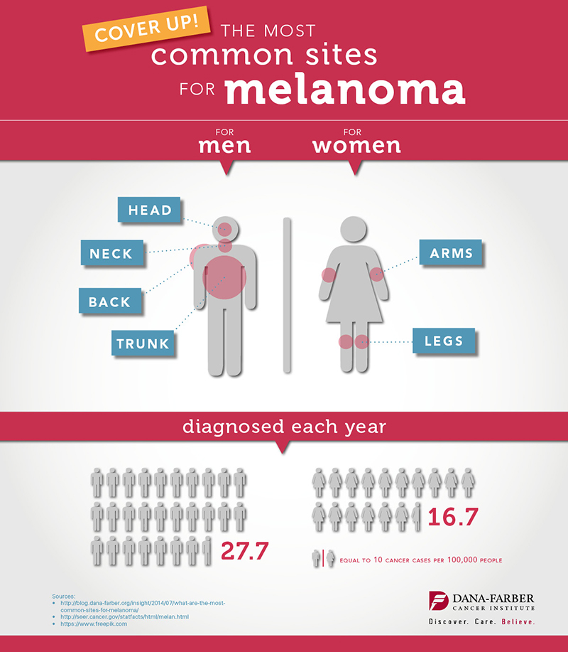what are the most common sites for melanoma infographic dana