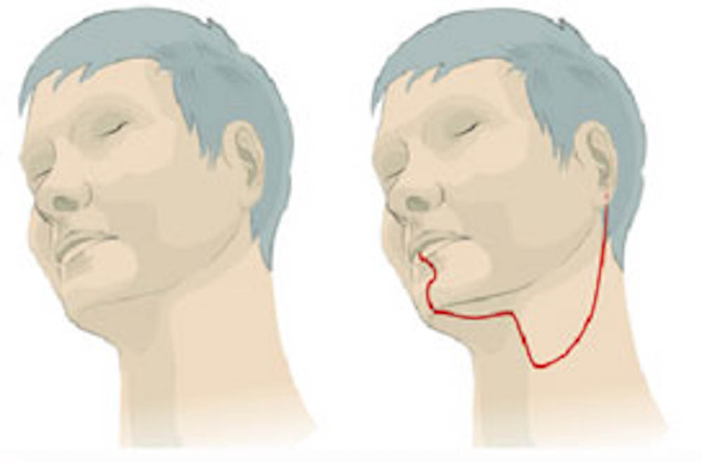 With robotic surgery (left), there is no incision and no scars, while open surgery (right) involves an incicsion from the lip to the ear.