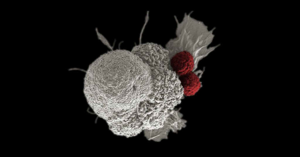 Checkpoint inhibitors are a form of immunotherapy. Here, a cancer cell (white) is being attacked by two T cells (red) as part of a natural immune response. Photo by National Cancer Institute.