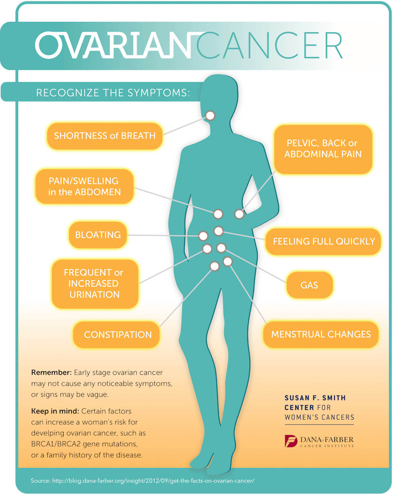 ovarian cancer symptoms, infographic