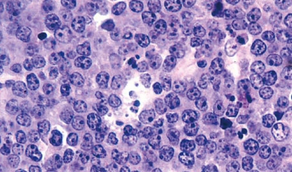 Lymphoma cells.