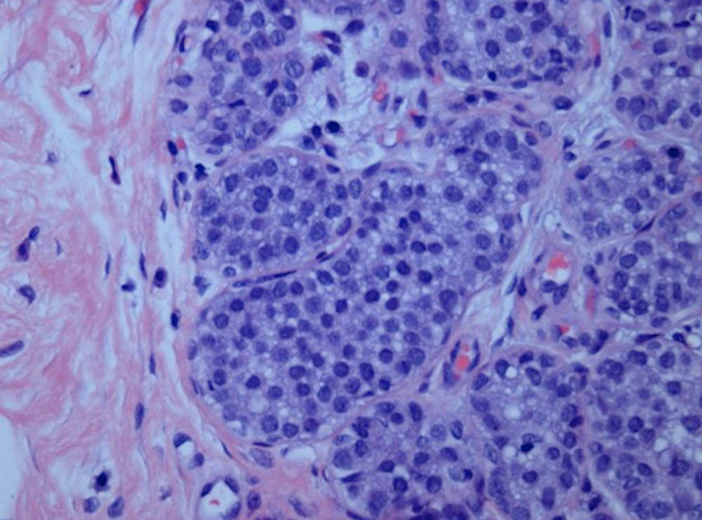 LCIS, breast cancer, lobular breast cancer