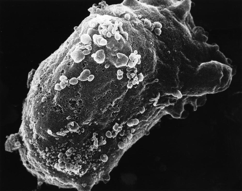 A microscope image of a lymphocyte (white blood cell) with an HIV cluster.