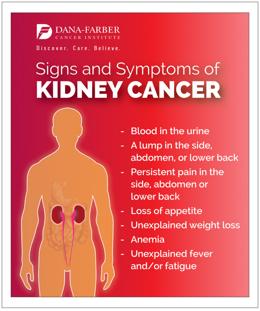 What Is Kidney Cancer Dana Farber Cancer Institute