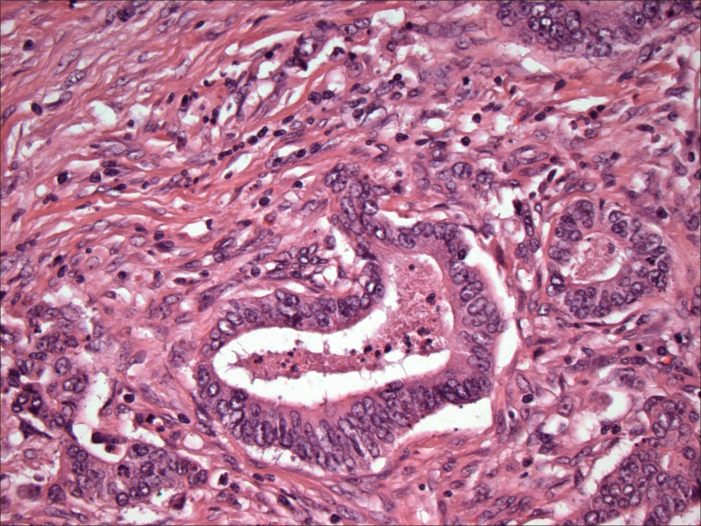 An image of colon cancer, with cancer cells forming circled structures.