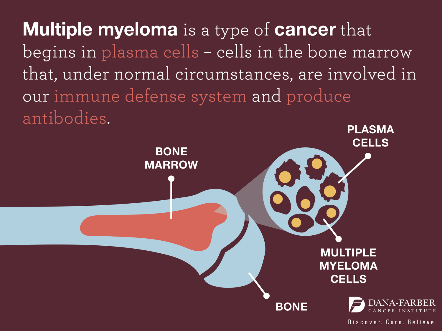 Multiple Myeloma: Signs and Symptoms | Dana-Farber Cancer ... Multiple Myeloma