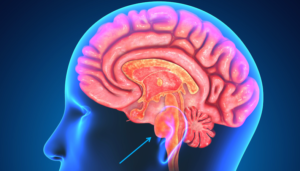 What Are Common Brain Tumor Symptoms?