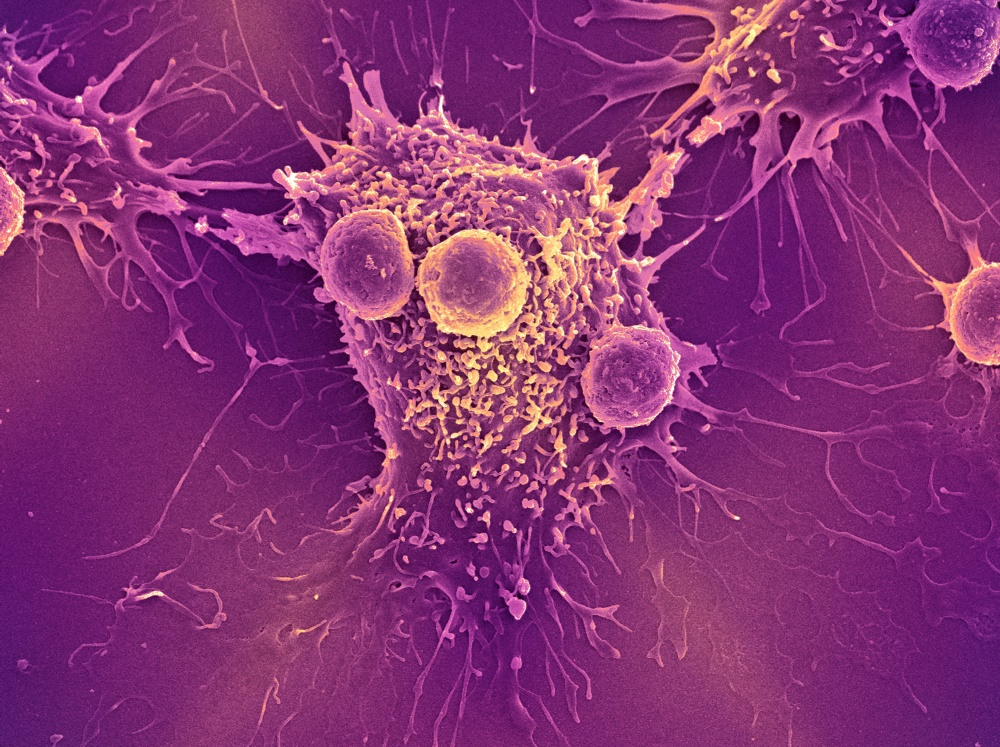 T lymphocyte cells — a type of white blood cell and one of the components of the body' s immune system — attached to a cancer cell.
