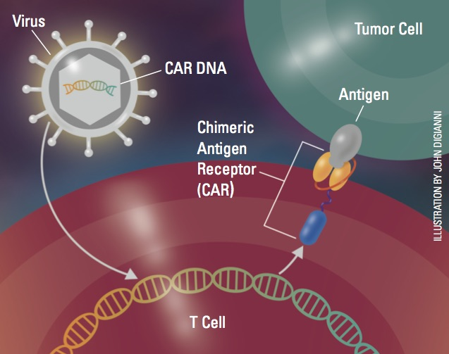 CAR T cells.