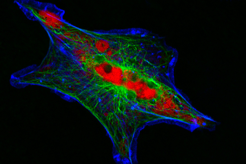 Human neuroblastoma cells.