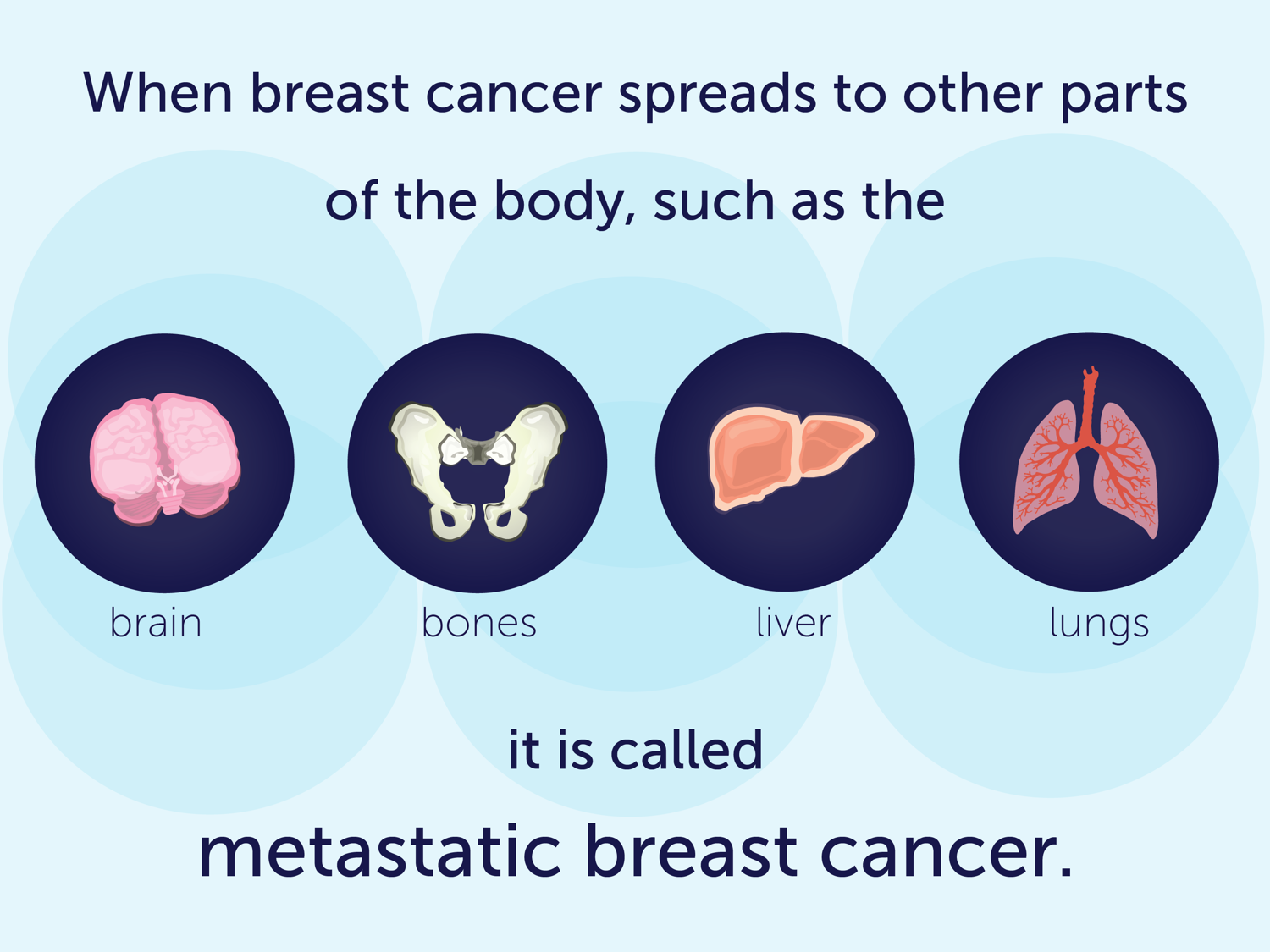 When breast cancer spreads to other parts of the body, such as the brain, bones, liver, or lungs, it is called metastatic breast cancer.