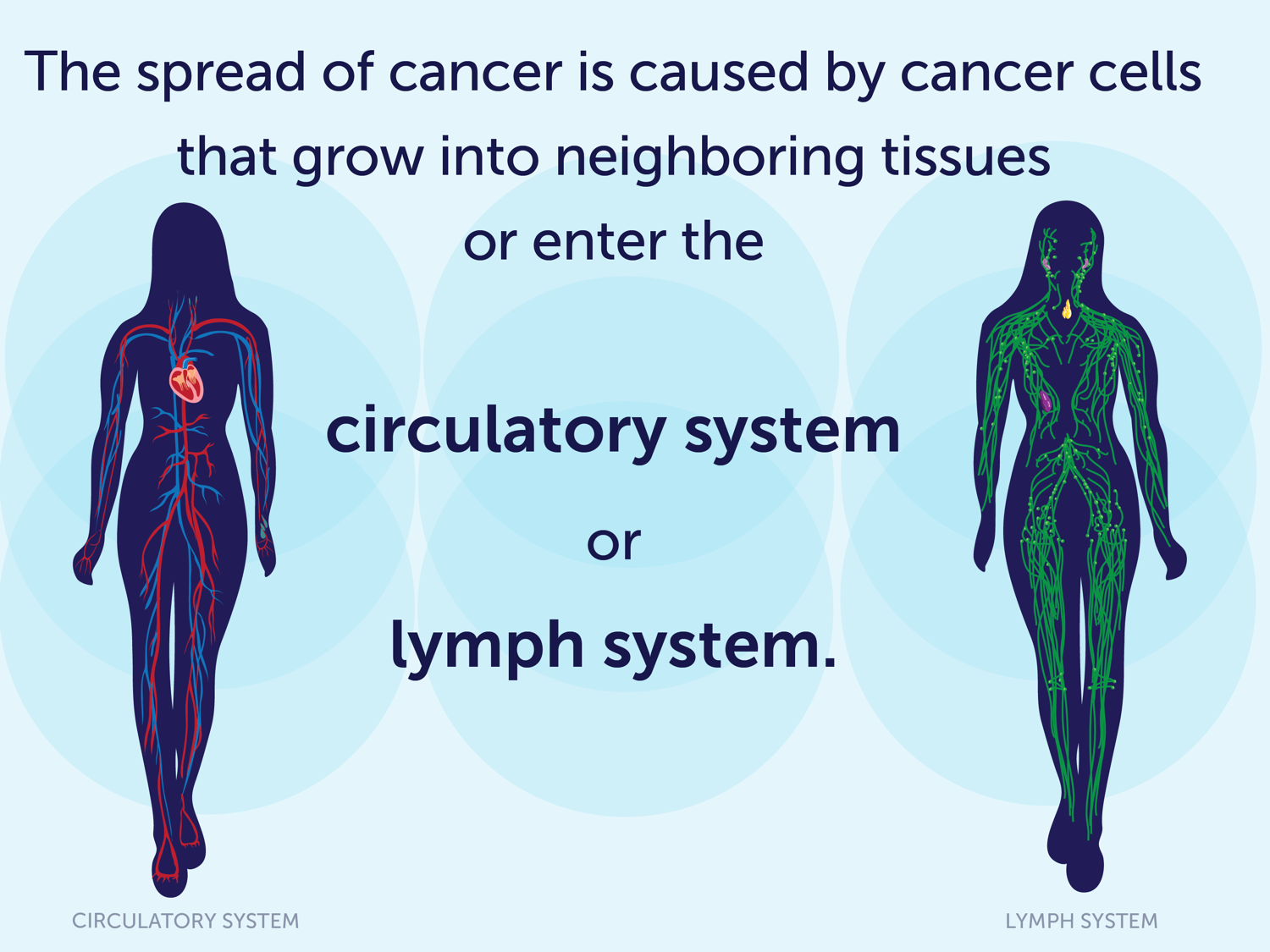 The spread of cancer is caused by cancer cells that grow into neighboring tissues or enter the circulatory system or lymph system.