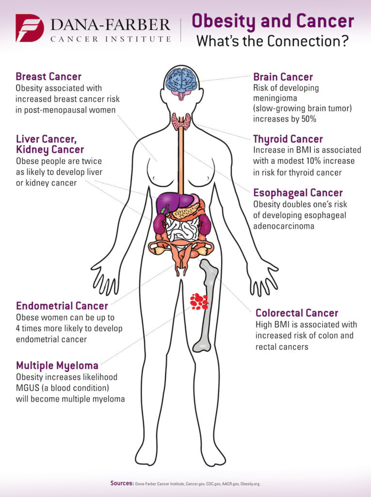 Can Obesity Cause Cancer?