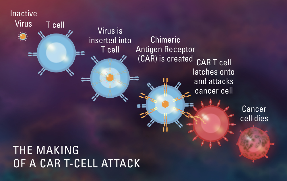 The making of a CAR T-cell attack.