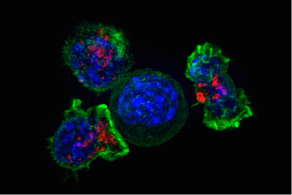 T cells surround a cancer cell. Credit: National Institutes of Health.