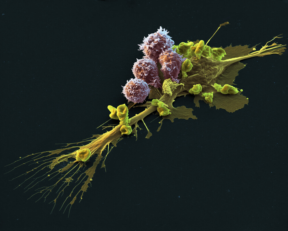 A cell being attacked and killed by CAR cells. CAR T-cell therapy is a form of immunotherapy.