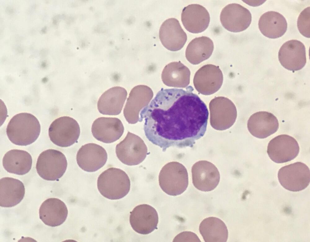 NK cells.