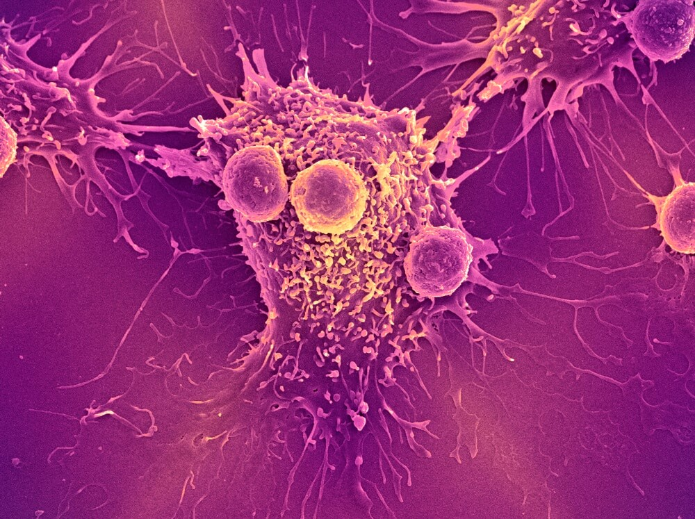 An image of T lymphocyte cells (smaller round cells) attached to a cancer cell.