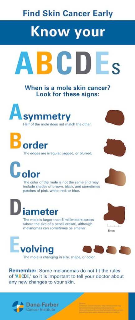 Skin Cancer Types Symptoms Information Dana Farber Cancer Institute Boston Ma